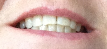 teeth after