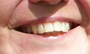 teeth before